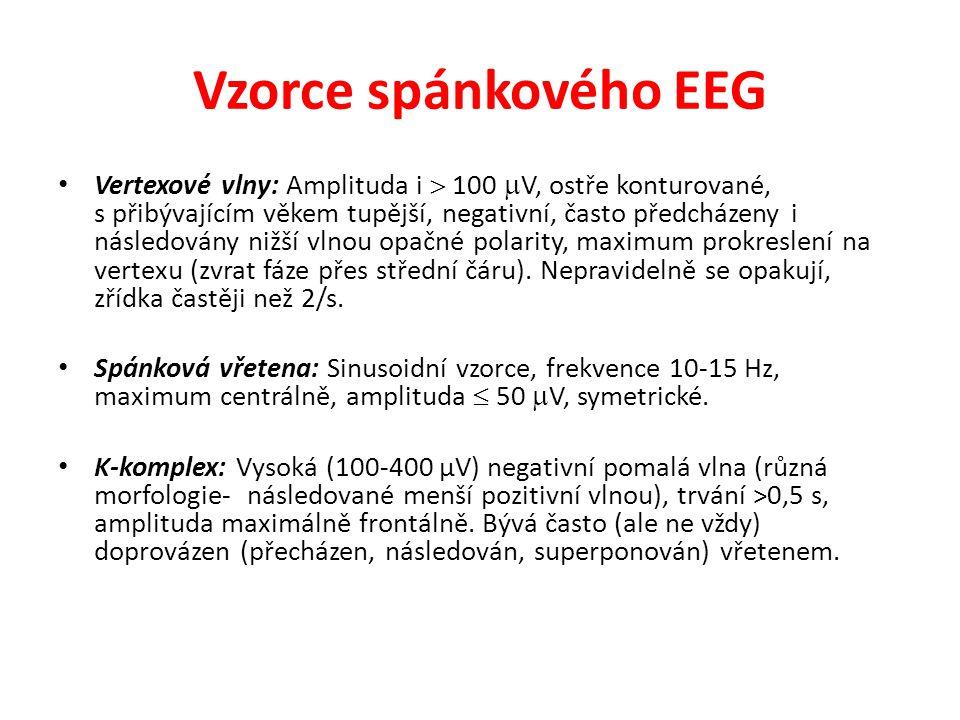 Vzorce spánkového EEG Vertexové vlny: Amplituda i  100  V, ostře konturované, s přibývajícím věkem tupější, negativní, často předcházeny i následová