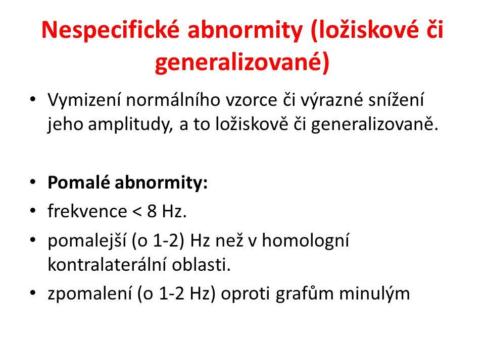 Nespecifické abnormity (ložiskové či generalizované) Vymizení normálního vzorce či výrazné snížení jeho amplitudy, a to ložiskově či generalizovaně. P