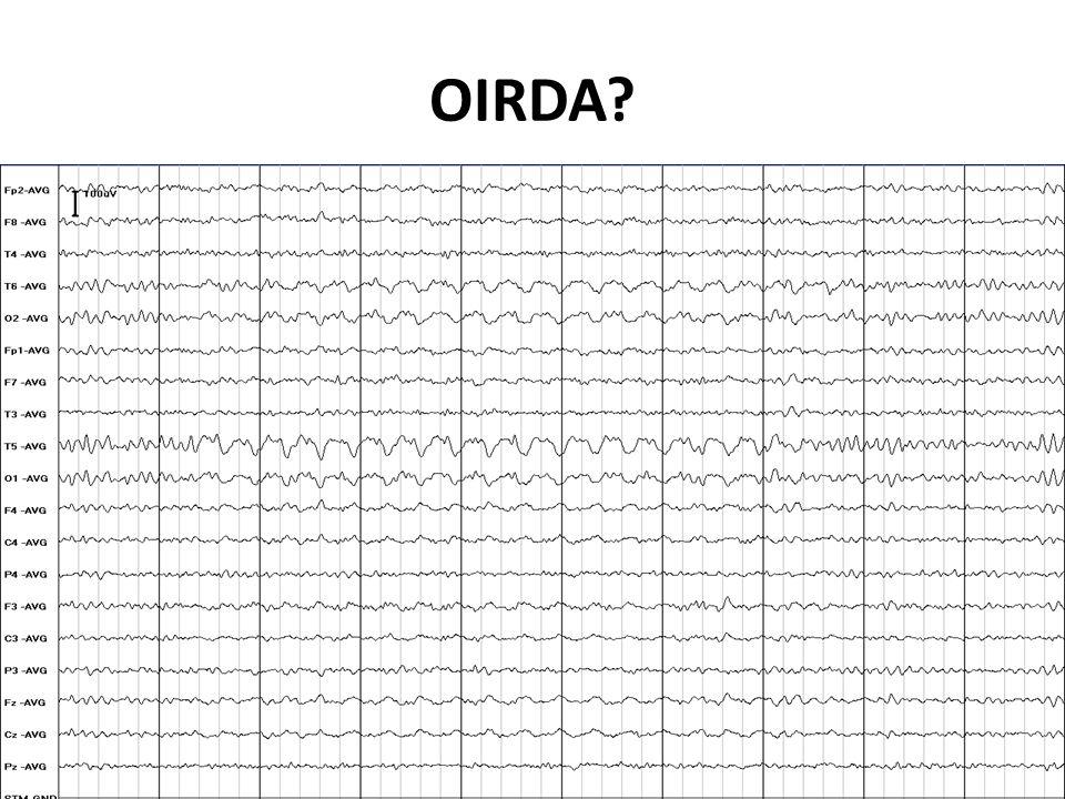 OIRDA?