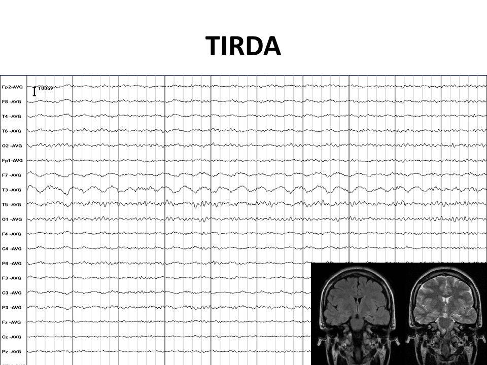 TIRDA