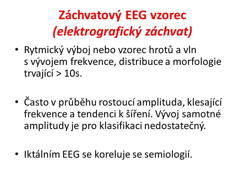 Záchvatový EEG vzorec (elektrografický záchvat) Rytmický výboj nebo vzorec hrotů a vln s vývojem frekvence, distribuce a morfologie trvající > 10s. Ča