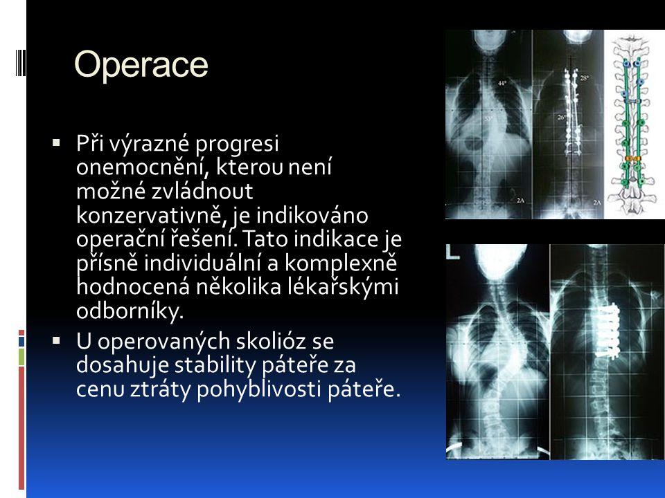 Operace  Při výrazné progresi onemocnění, kterou není možné zvládnout konzervativně, je indikováno operační řešení. Tato indikace je přísně individuá