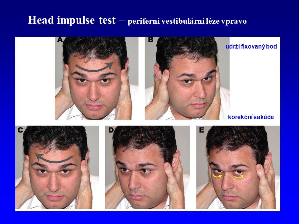 Head impulse test – periferní vestibulární léze vpravo udrží fixovaný bod korekční sakáda