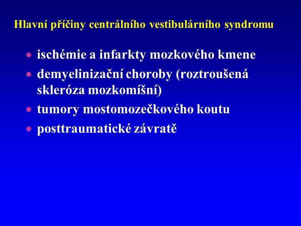 Hlavní příčiny centrálního vestibulárního syndromu  ischémie a infarkty mozkového kmene  demyelinizační choroby (roztroušená skleróza mozkomíšní) 
