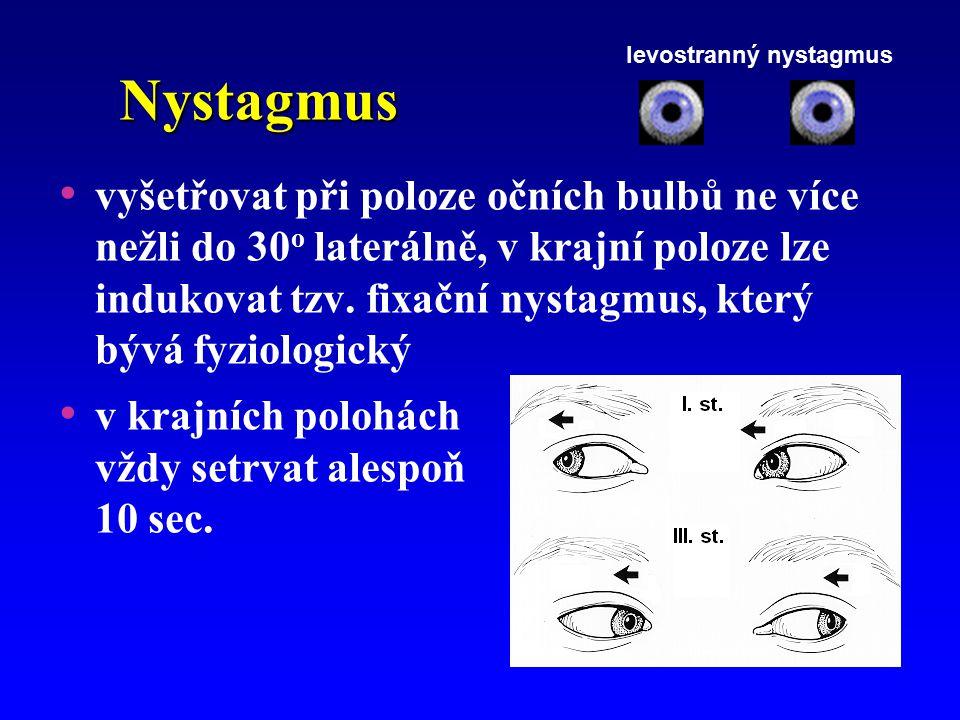 Nystagmus vyšetřovat při poloze očních bulbů ne více nežli do 30 o laterálně, v krajní poloze lze indukovat tzv. fixační nystagmus, který bývá fyziolo