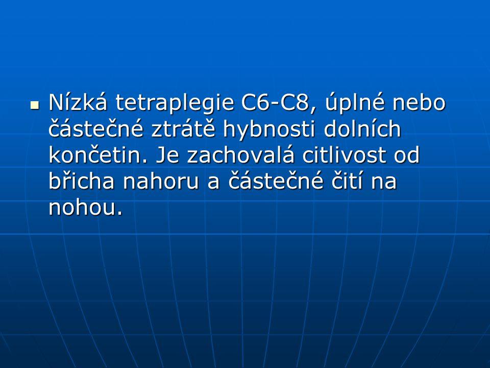 Nízká tetraplegie C6-C8, úplné nebo částečné ztrátě hybnosti dolních končetin. Je zachovalá citlivost od břicha nahoru a částečné čití na nohou. Nízká