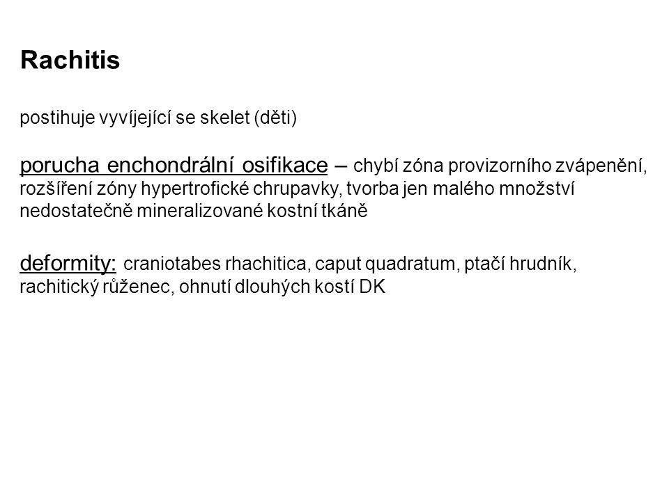 Rachitis postihuje vyvíjející se skelet (děti) porucha enchondrální osifikace – chybí zóna provizorního zvápenění, rozšíření zóny hypertrofické chrupavky, tvorba jen malého množství nedostatečně mineralizované kostní tkáně deformity: craniotabes rhachitica, caput quadratum, ptačí hrudník, rachitický růženec, ohnutí dlouhých kostí DK