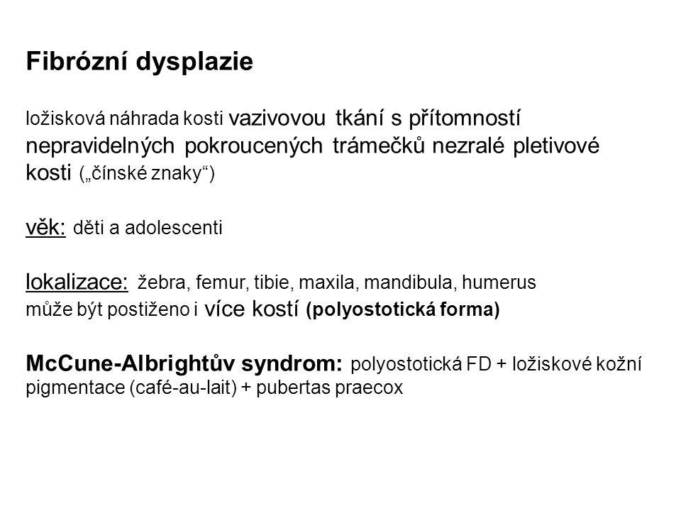 """Fibrózní dysplazie ložisková náhrada kosti vazivovou tkání s přítomností nepravidelných pokroucených trámečků nezralé pletivové kosti (""""čínské znaky ) věk: děti a adolescenti lokalizace: žebra, femur, tibie, maxila, mandibula, humerus může být postiženo i více kostí (polyostotická forma) McCune-Albrightův syndrom: polyostotická FD + ložiskové kožní pigmentace (café-au-lait) + pubertas praecox"""