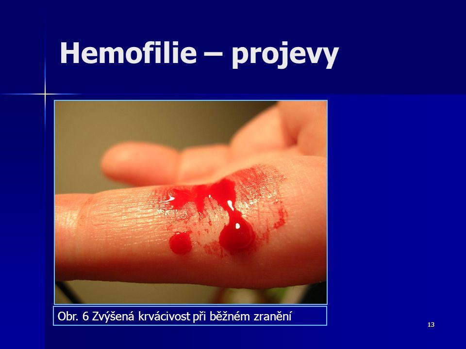 13 Hemofilie – projevy Obr. 6 Zvýšená krvácivost při běžném zranění