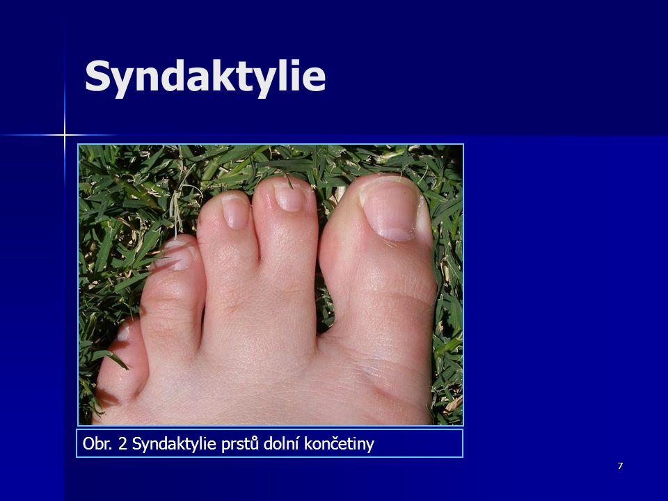 Syndaktylie Obr. 2 Syndaktylie prstů dolní končetiny 7