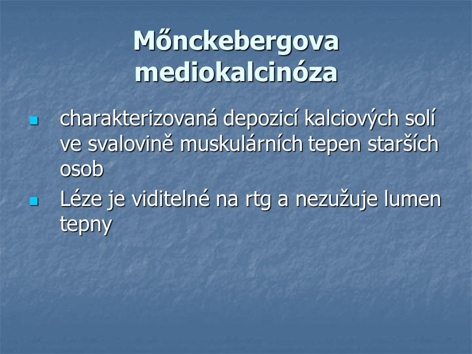 Mőnckebergova mediokalcinóza charakterizovaná depozicí kalciových solí ve svalovině muskulárních tepen starších osob charakterizovaná depozicí kalciov