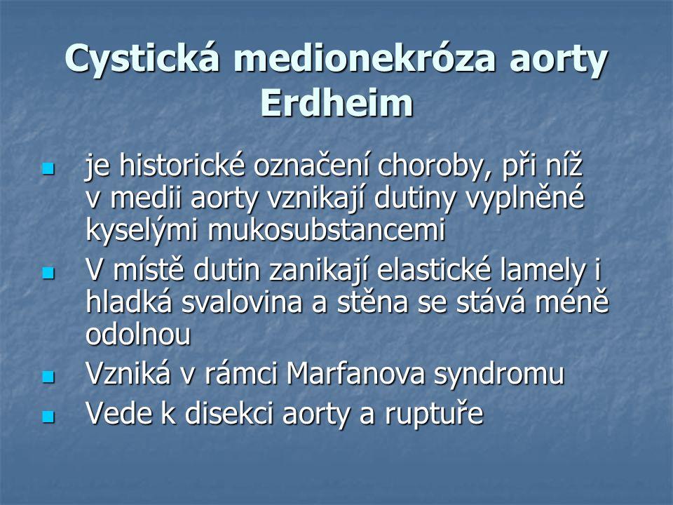 Cystická medionekróza aorty Erdheim je historické označení choroby, při níž v medii aorty vznikají dutiny vyplněné kyselými mukosubstancemi je histori