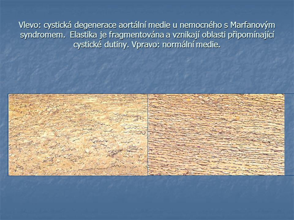 Vlevo: cystická degenerace aortální medie u nemocného s Marfanovým syndromem. Elastika je fragmentována a vznikají oblasti připomínající cystické duti
