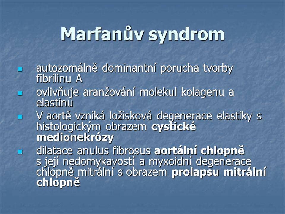 Marfanův syndrom autozomálně dominantní porucha tvorby fibrilinu A autozomálně dominantní porucha tvorby fibrilinu A ovlivňuje aranžování molekul kola