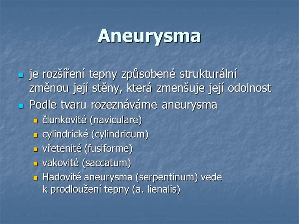 Aneurysma je rozšíření tepny způsobené strukturální změnou její stěny, která zmenšuje její odolnost je rozšíření tepny způsobené strukturální změnou j