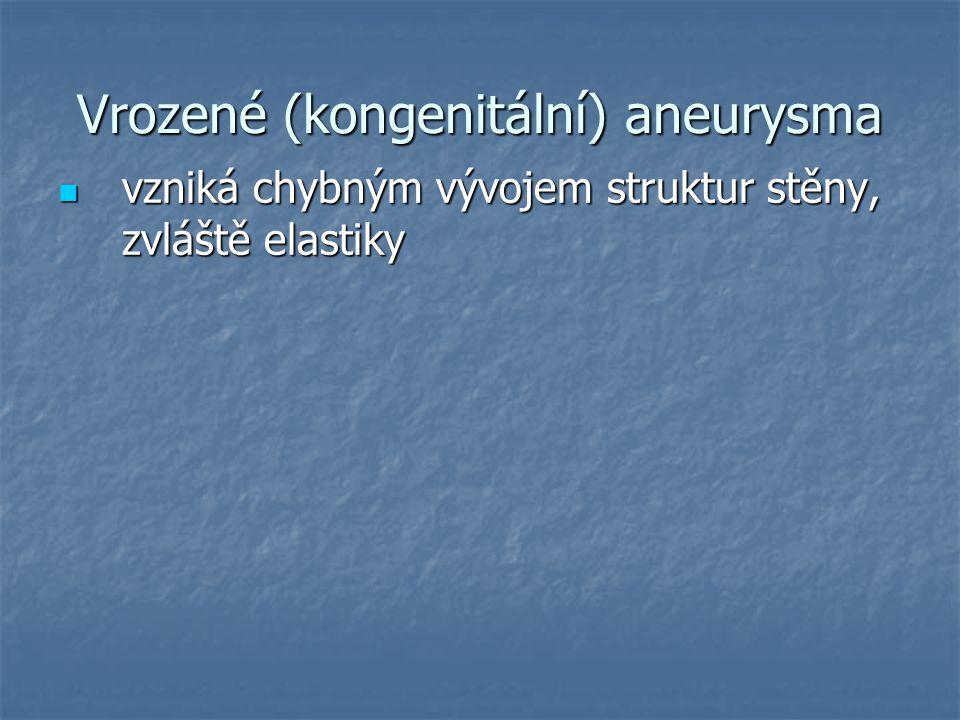 Vrozené (kongenitální) aneurysma vzniká chybným vývojem struktur stěny, zvláště elastiky vzniká chybným vývojem struktur stěny, zvláště elastiky