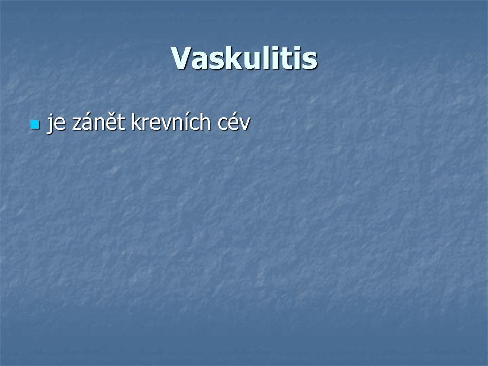 Vaskulitis je zánět krevních cév je zánět krevních cév