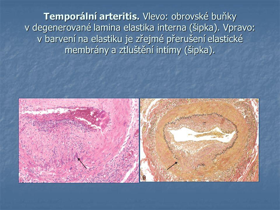 Temporální arteritis. Vlevo: obrovské buňky v degenerované lamina elastika interna (šipka). Vpravo: v barvení na elastiku je zřejmé přerušení elastick