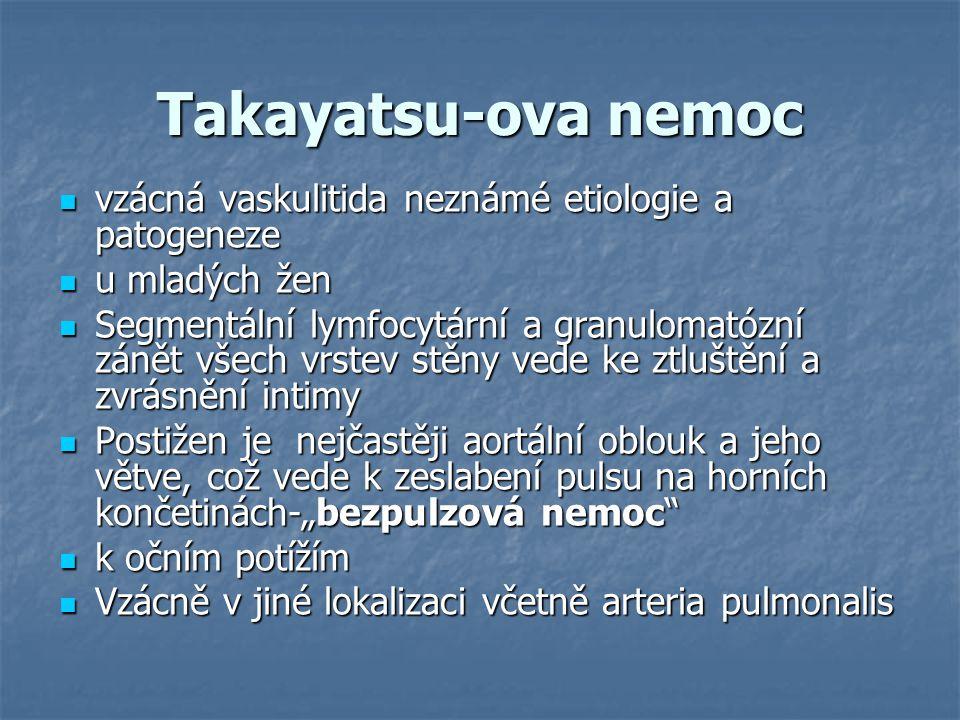 Takayatsu-ova nemoc vzácná vaskulitida neznámé etiologie a patogeneze vzácná vaskulitida neznámé etiologie a patogeneze u mladých žen u mladých žen Se