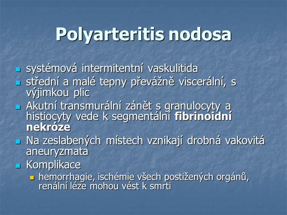 Polyarteritis nodosa systémová intermitentní vaskulitida systémová intermitentní vaskulitida střední a malé tepny převážně viscerální, s výjimkou plic