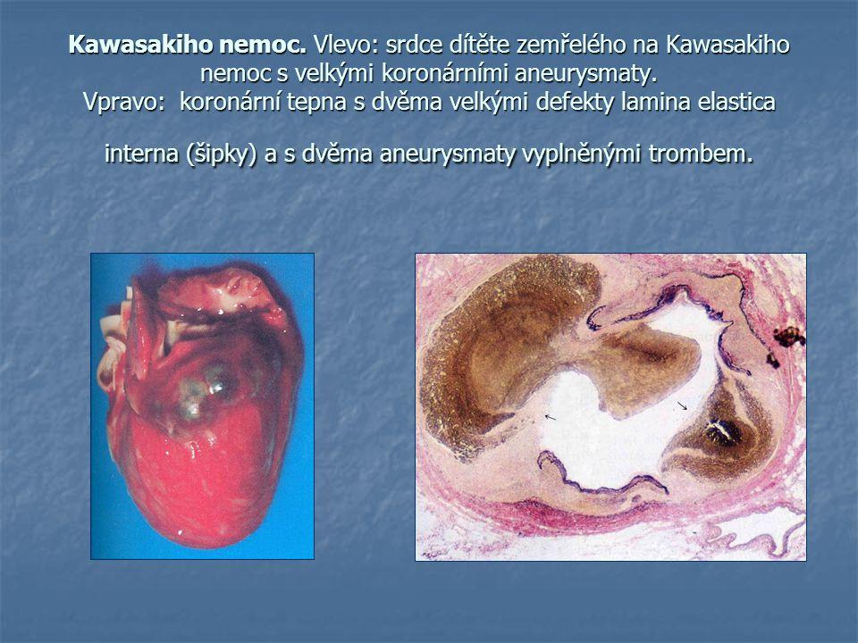 Kawasakiho nemoc. Vlevo: srdce dítěte zemřelého na Kawasakiho nemoc s velkými koronárními aneurysmaty. Vpravo: koronární tepna s dvěma velkými defekty