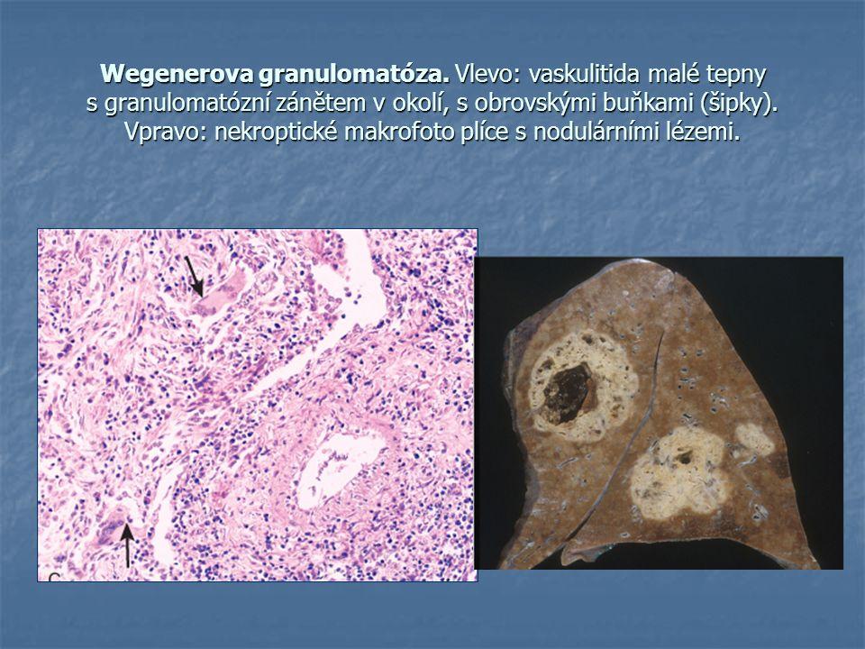 Wegenerova granulomatóza. Vlevo: vaskulitida malé tepny s granulomatózní zánětem v okolí, s obrovskými buňkami (šipky). Vpravo: nekroptické makrofoto