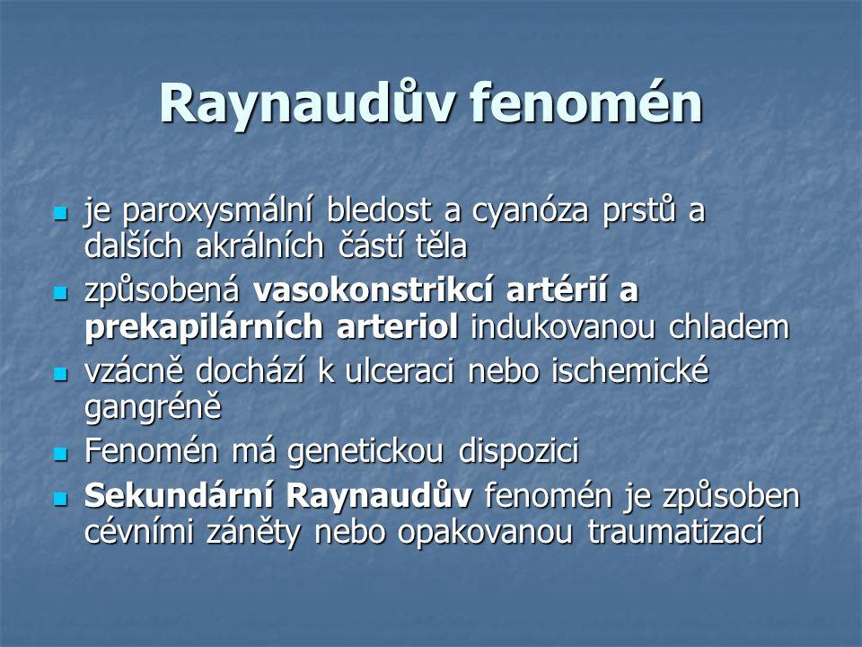 Raynaudův fenomén je paroxysmální bledost a cyanóza prstů a dalších akrálních částí těla je paroxysmální bledost a cyanóza prstů a dalších akrálních č