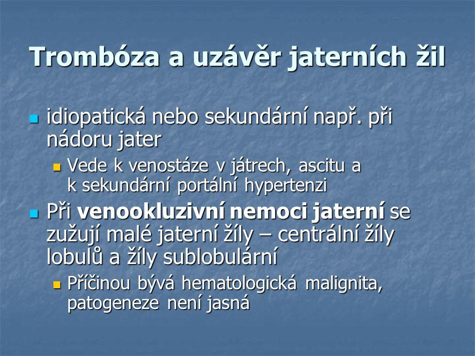 Trombóza a uzávěr jaterních žil idiopatická nebo sekundární např. při nádoru jater idiopatická nebo sekundární např. při nádoru jater Vede k venostáze