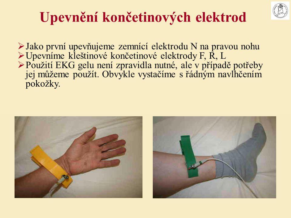  Jako první upevňujeme zemnící elektrodu N na pravou nohu  Upevníme kleštinové končetinové elektrody F, R, L  Použití EKG gelu není zpravidla nutné
