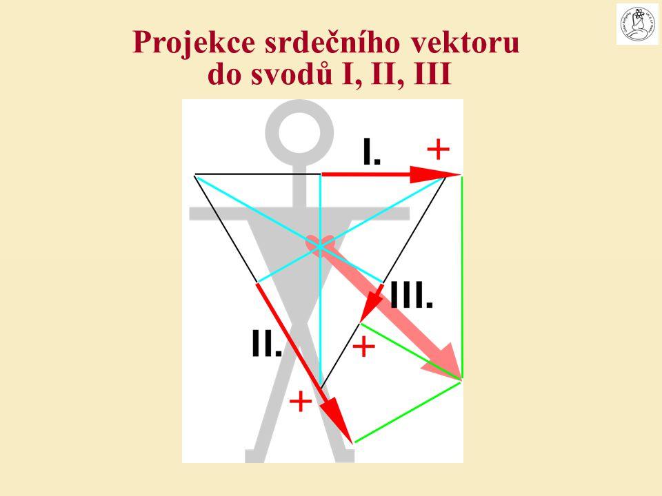 Projekce srdečního vektoru do svodů I, II, III