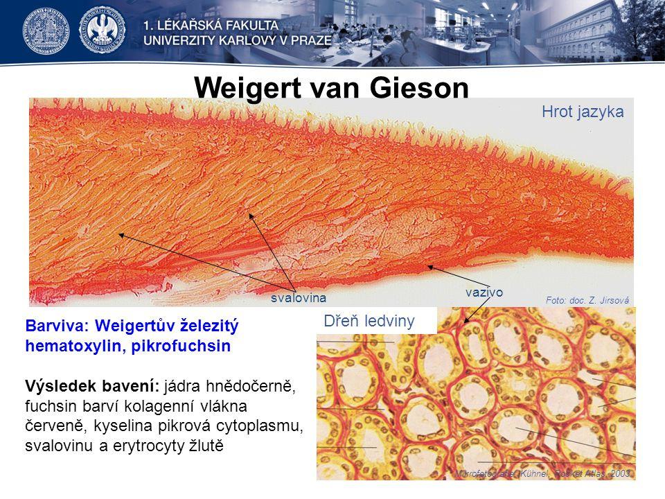 Hrot jazyka Dřeň ledviny Weigert van Gieson Foto: doc. Z. Jirsová Mikrofotografie: Kühnel, Pocket Atlas, 2003 Barviva: Weigertův železitý hematoxylin,