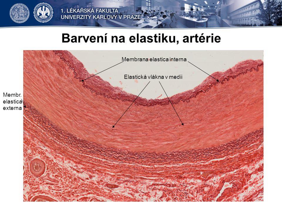 Barvení na elastiku, artérie Membrana elastica interna Elastická vlákna v medii Membr. elastica externa