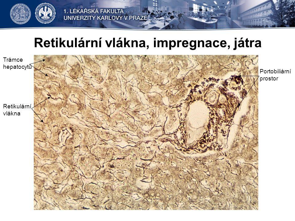 Retikulární vlákna, impregnace, játra Trámce hepatocytů Retikulární vlákna Portobiliární prostor