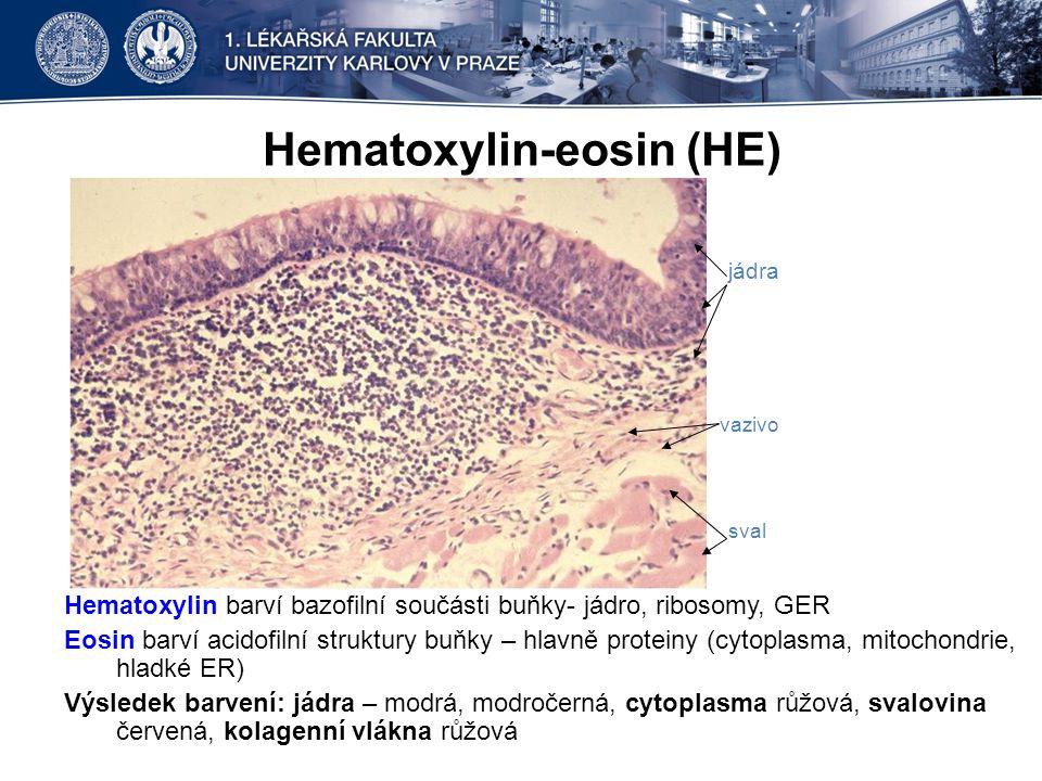 HE, močový měchýř svalovina vazivo epitel vazivo cévy sval