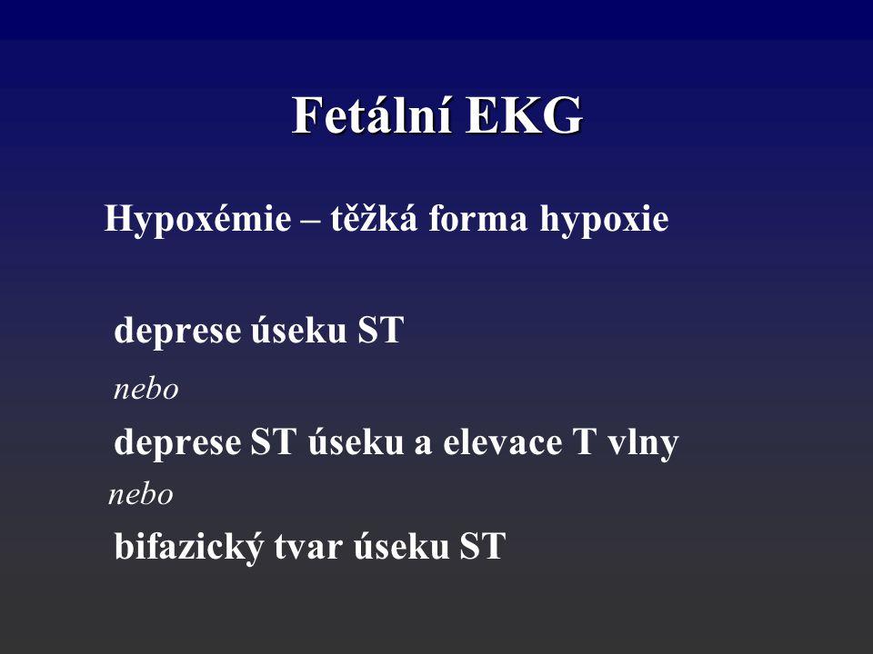 Fetální EKG Hypoxémie – těžká forma hypoxie deprese úseku ST nebo deprese ST úseku a elevace T vlny nebo bifazický tvar úseku ST