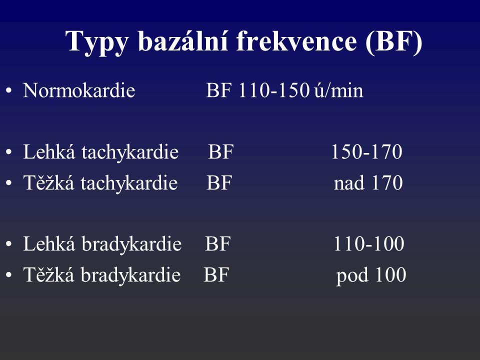 Normokardie BF 110-150 ú/min Lehká tachykardie BF 150-170 Těžká tachykardie BF nad 170 Lehká bradykardie BF 110-100 Těžká bradykardie BF pod 100 Typy