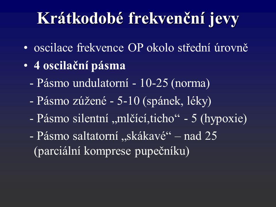 Krátkodobé frekvenční jevy oscilace frekvence OP okolo střední úrovně 4 oscilační pásma - Pásmo undulatorní - 10-25 (norma) - Pásmo zúžené - 5-10 (spá