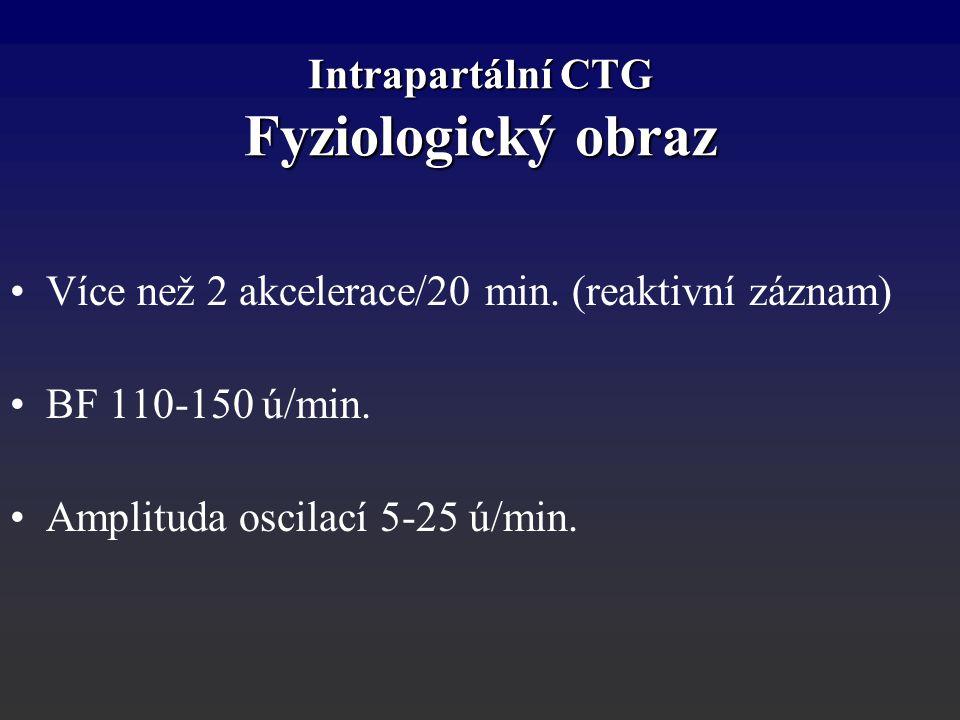 Intrapartální CTG Fyziologický obraz Více než 2 akcelerace/20 min. (reaktivní záznam) BF 110-150 ú/min. Amplituda oscilací 5-25 ú/min.