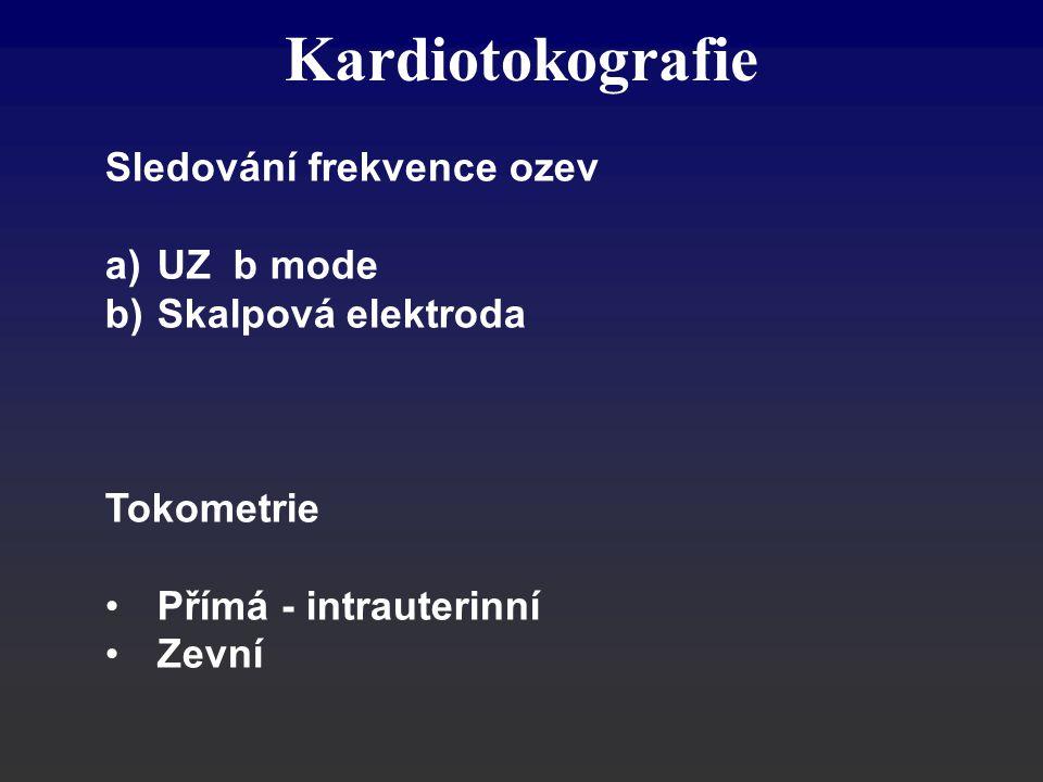 Kardiotokografie Sledování frekvence ozev a)UZ b mode b)Skalpová elektroda Tokometrie Přímá - intrauterinní Zevní