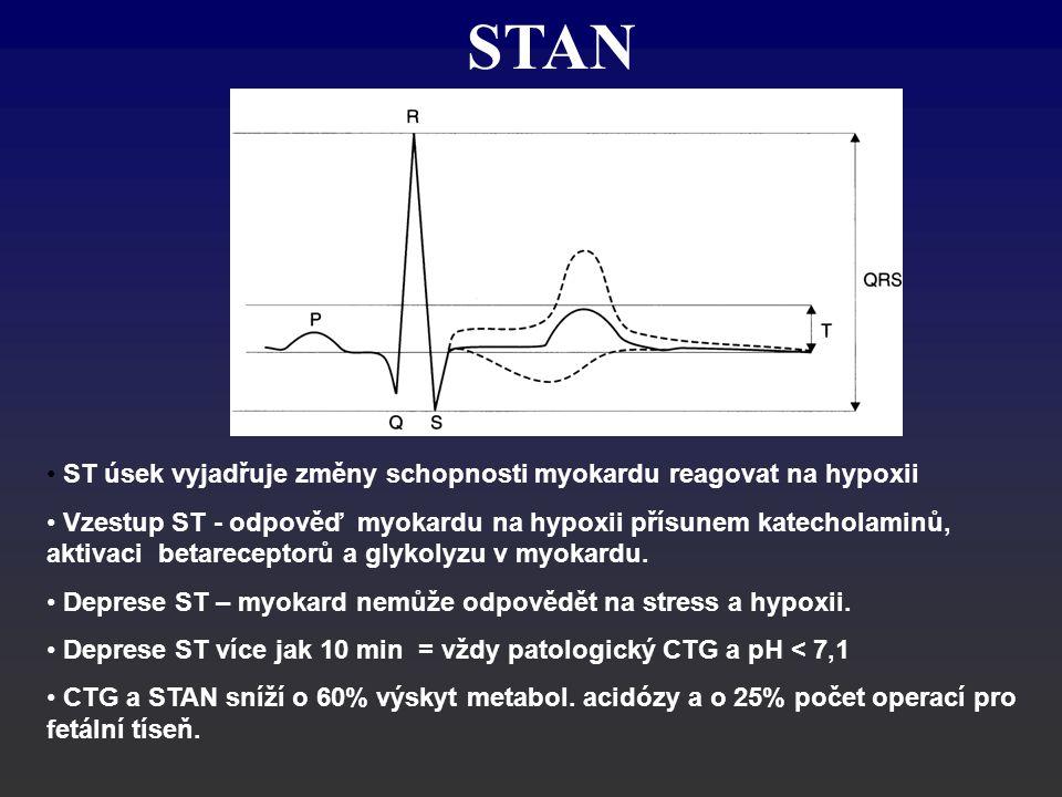 STAN ST úsek vyjadřuje změny schopnosti myokardu reagovat na hypoxii Vzestup ST - odpověď myokardu na hypoxii přísunem katecholaminů, aktivaci betarec