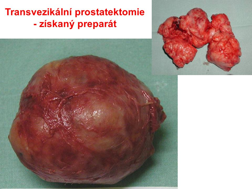 Projekt Preventio, 4-4-2009 Transvezikální prostatektomie - získaný preparát