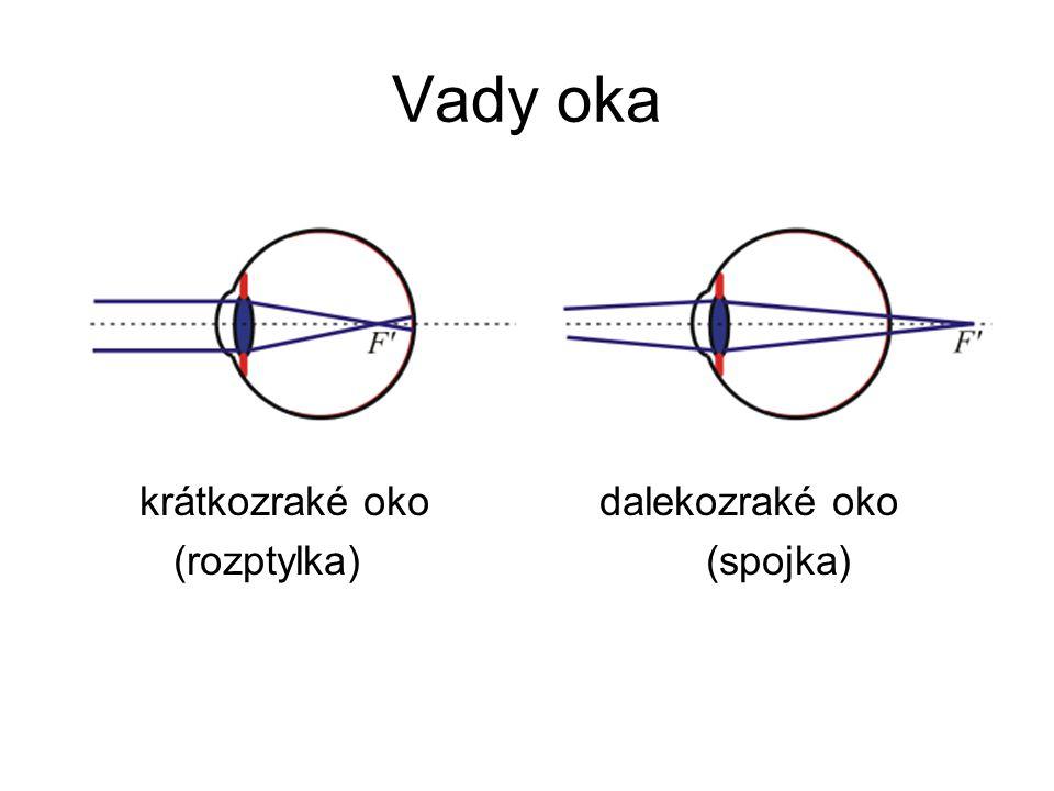 Vady oka krátkozraké oko dalekozraké oko (rozptylka) (spojka)
