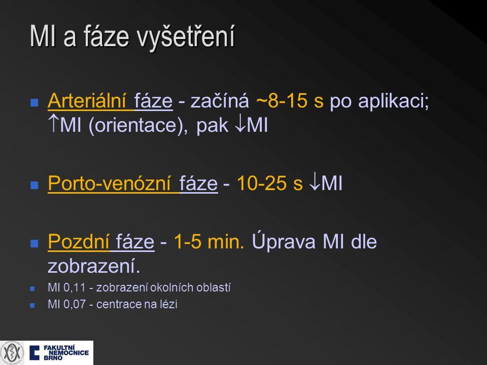 MI a fáze vyšetření Arteriální fáze - začíná ~8-15 s po aplikaci;  MI (orientace), pak  MI Porto-venózní fáze - 10-25 s  MI Pozdní fáze - 1-5 min.