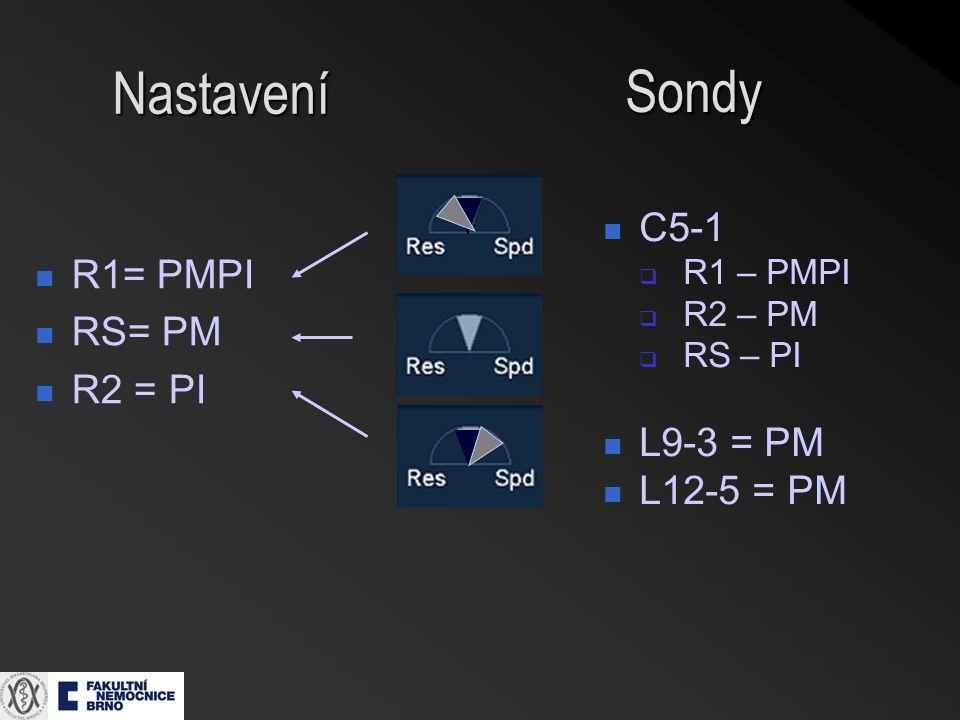 Nastavení R1= PMPI RS= PM R2 = PI Sondy C5-1  R1 – PMPI  R2 – PM  RS – PI L9-3 = PM L12-5 = PM