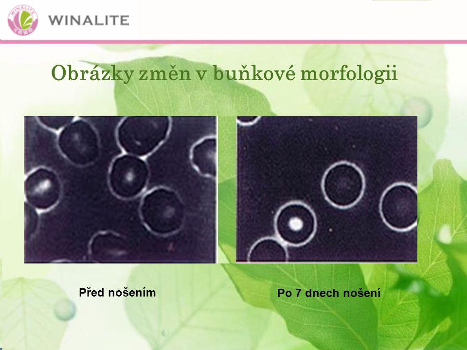 Obrázky změn v buňkové morfologii Po 7 dnech nošení Před nošením