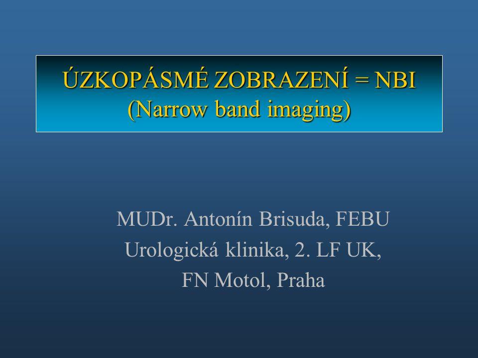 MUDr. Antonín Brisuda, FEBU Urologická klinika, 2. LF UK, FN Motol, Praha ÚZKOPÁSMÉ ZOBRAZENÍ = NBI (Narrow band imaging)