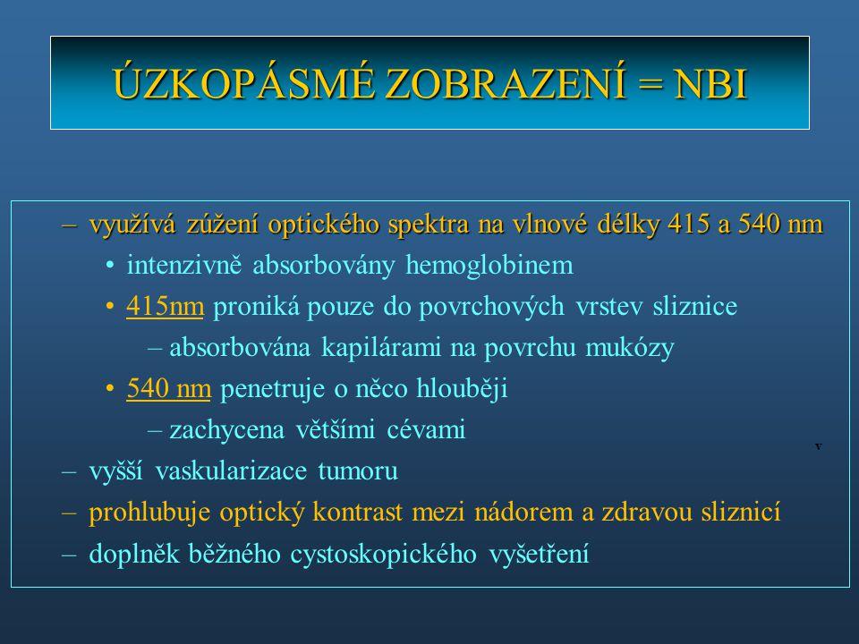 ÚZKOPÁSMÉ ZOBRAZENÍ = NBI –využívá zúžení optického spektra na vlnové délky 415 a 540 nm intenzivně absorbovány hemoglobinem 415nm proniká pouze do po