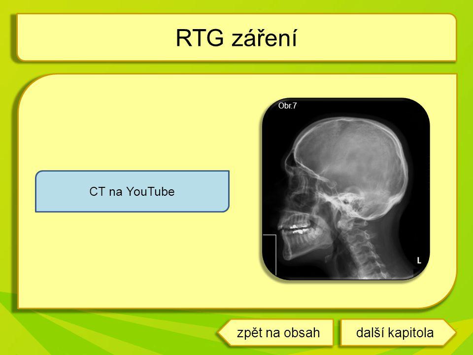 RTG záření Obr.7 CT na YouTube další kapitolazpět na obsah