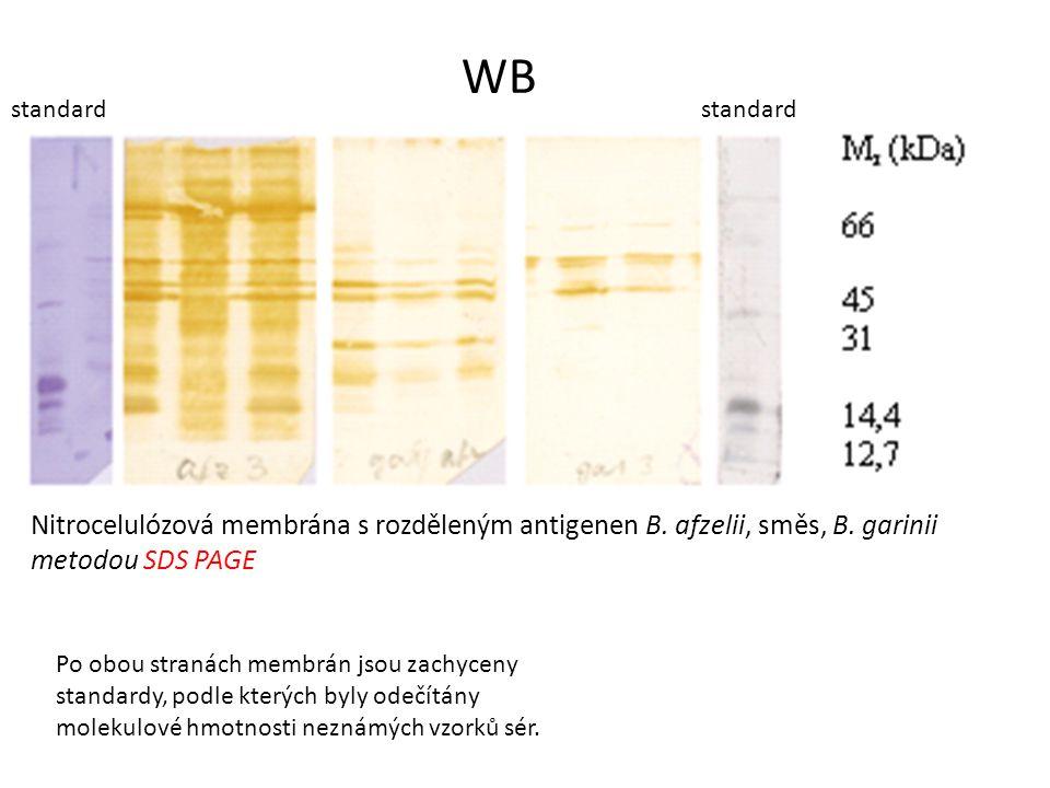 Nitrocelulózová membrána s rozděleným antigenen B. afzelii, směs, B. garinii metodou SDS PAGE WB standard Po obou stranách membrán jsou zachyceny stan