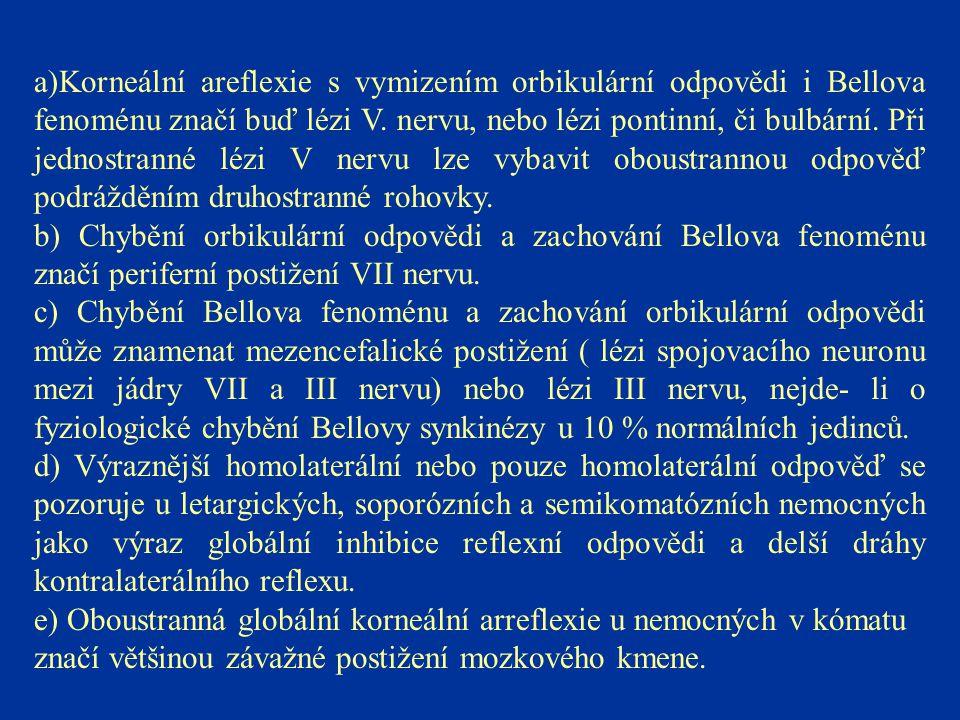 a)Korneální areflexie s vymizením orbikulární odpovědi i Bellova fenoménu značí buď lézi V. nervu, nebo lézi pontinní, či bulbární. Při jednostranné l